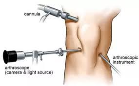 ניתוח ארטרוסקופיית ברך