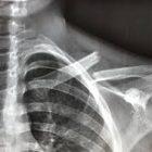 צילום רנטגן של שבר בעצם הבריח