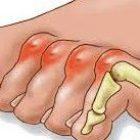 תסמונת אצבע פטיש