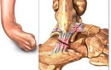 ניתוח לשחזור רצועות קרסול